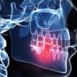 Sprawdzone domowe sposoby na ból zęba