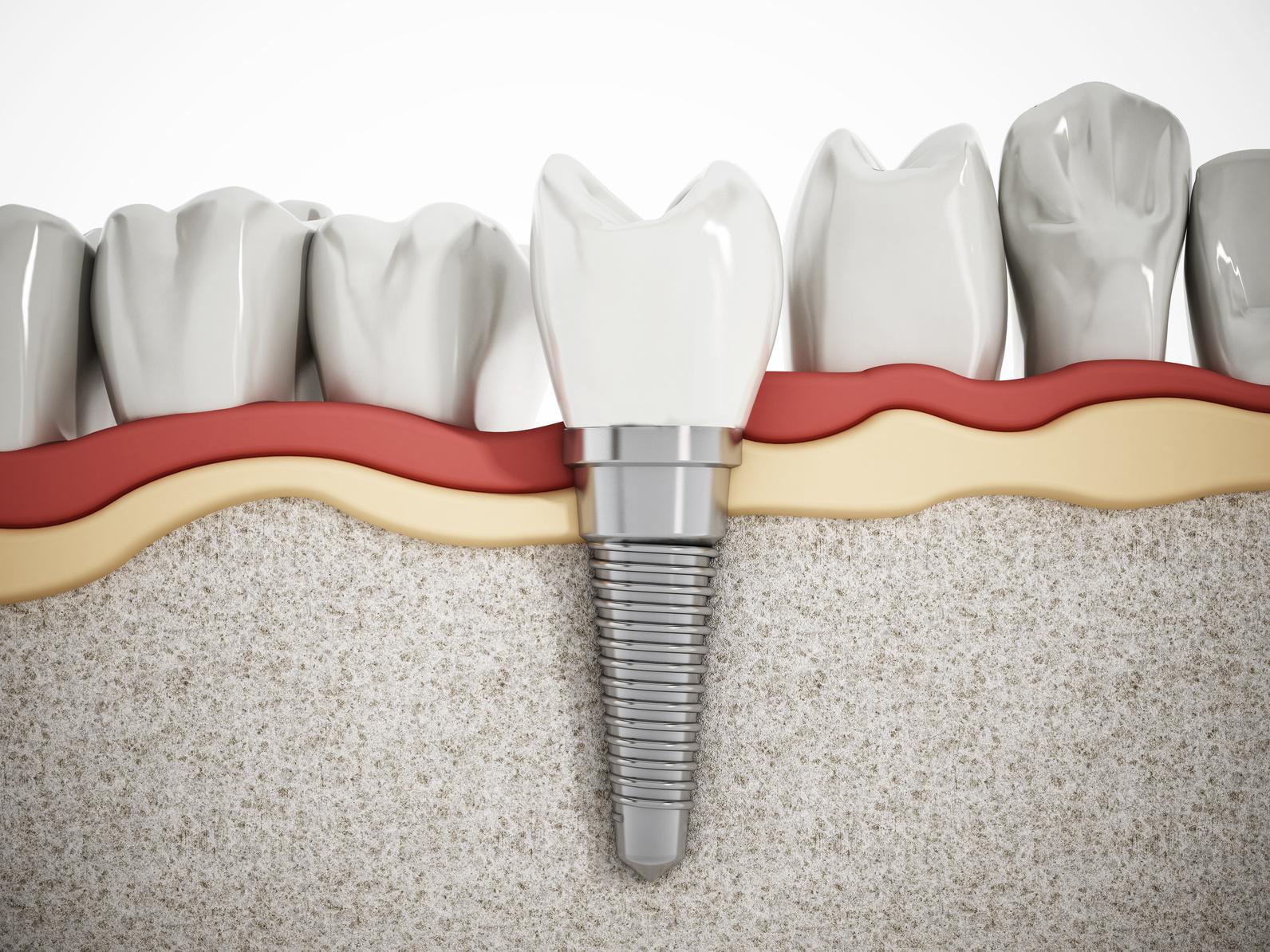 Implanty stomatologiczne – piękny uśmiech na długie lata